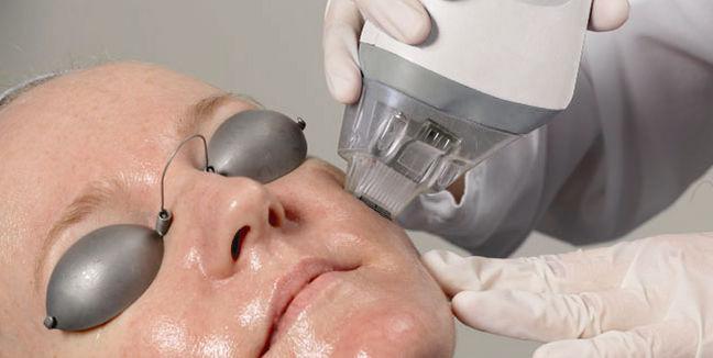 equipo laser fraccionado piel
